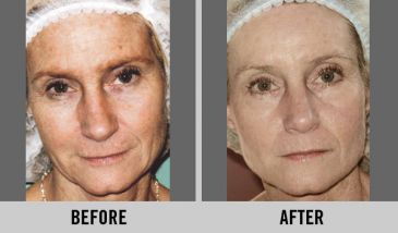 Improvement with an Anti-Aging Facial.