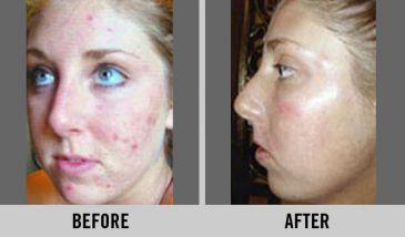 Improvement with Blemish Control Facial.