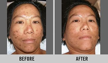 Improvement with Melanin Brighten Up Facial.